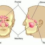 paranasal-sinus