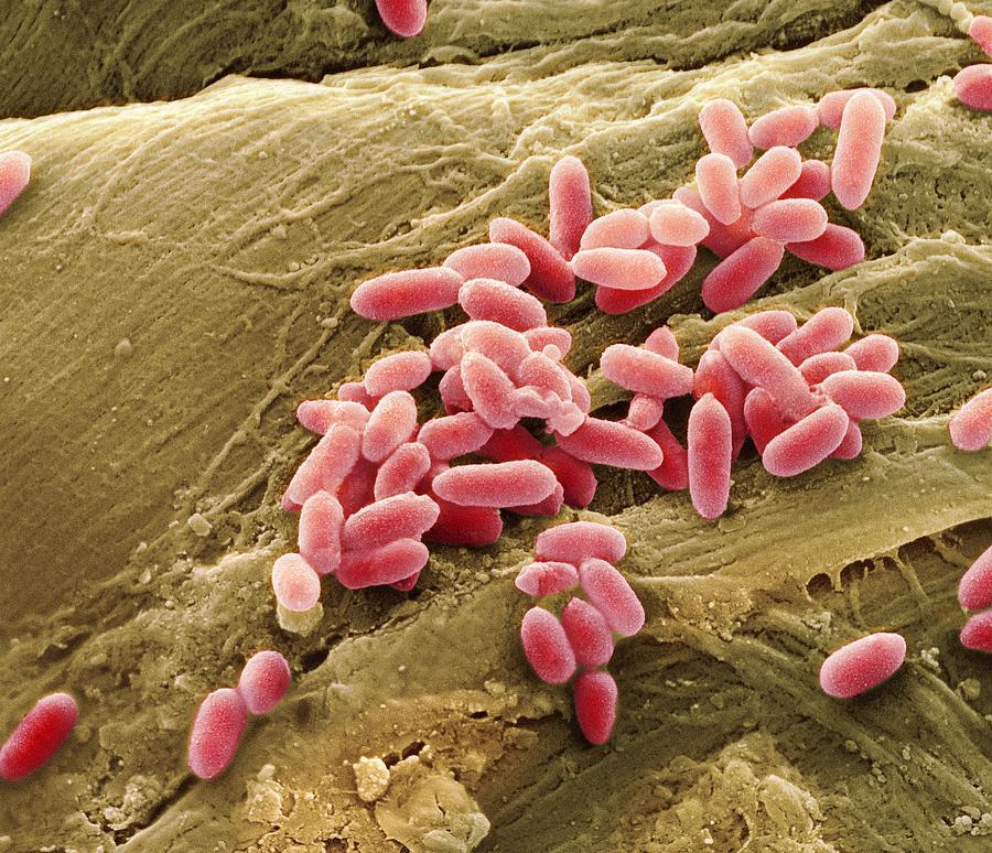 3-pseudomonas-aeruginosa-bacteria-sem-steve-gschmeissner
